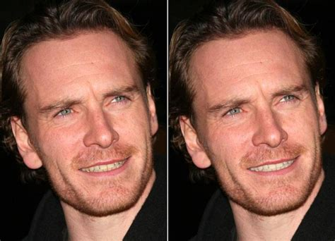 F is for Fassbender: Michael Before and After Teeth