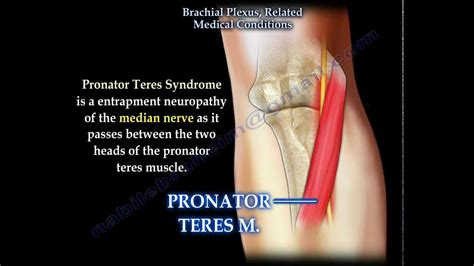 Brachial Plexus, Related Medical Conditions - Everything