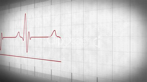 EKG electrocardiogram pulse real: Royalty-free video and