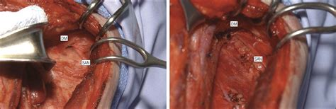 Operative Technique for Modified Radical Neck Dissection